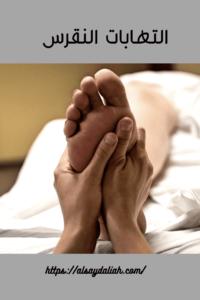 التهابات النقرس افضل علاج للنقرس والاملاح 2020 3